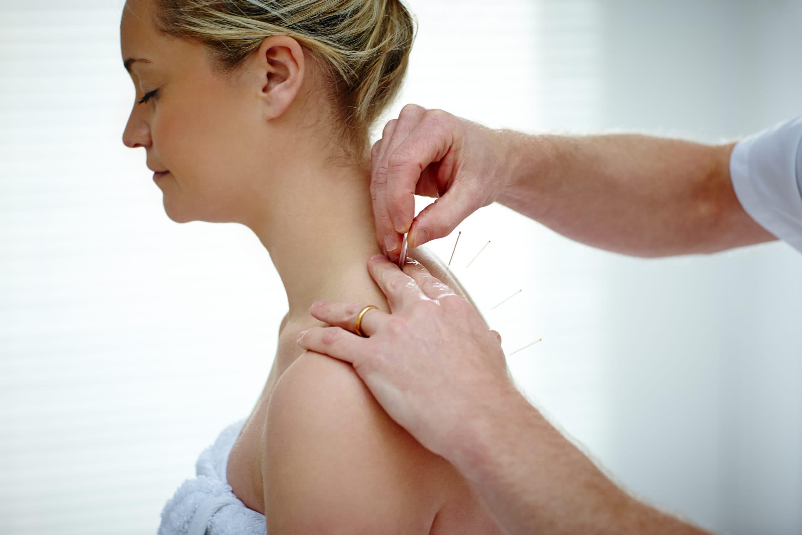 Eine Patientin wird mit Akupunktur Nadeln behandelt
